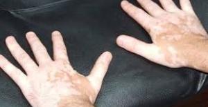 Vitiligo Testleri ve Teşhisi Nasıl Yapılır?